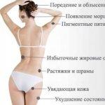 Мезотерапия | Женский сайт о женщине и обществе